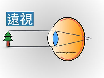 Hyperopia eye.jpg