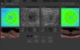 ANGIOGRAPHY OCT Both eyes Retina Angio v