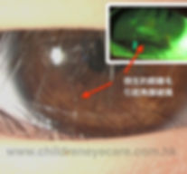 Anterior eye check.jpg