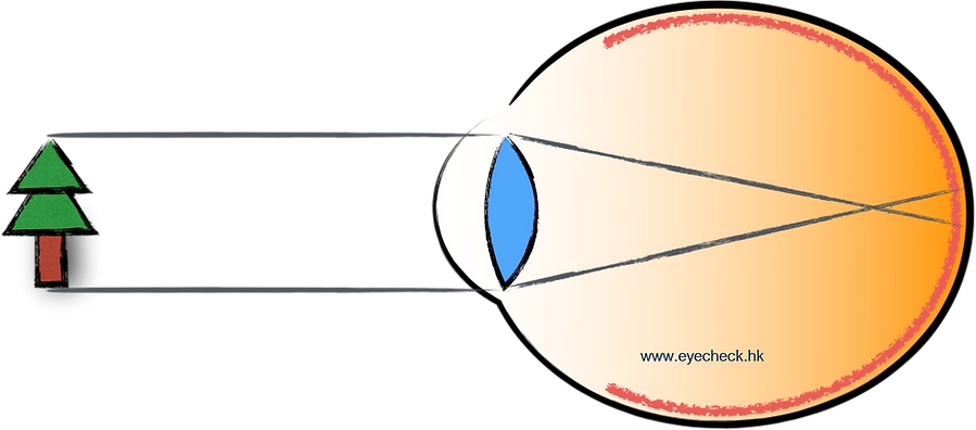 Myopic eye demo.png