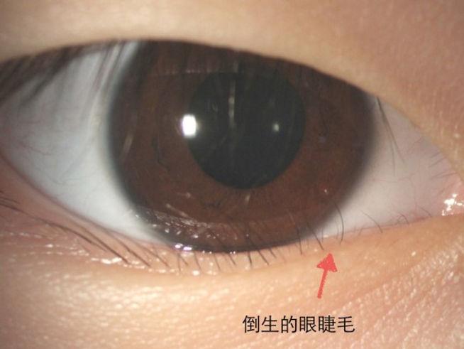 Trichiasis.jpg