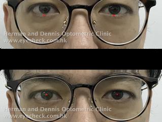 漸進眼鏡位置問題