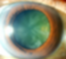 Cataract.PNG