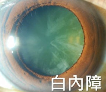 cornea and cataract.jpg