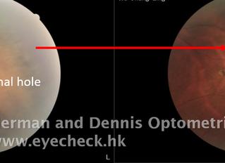 視網膜穿孔 - 已治療