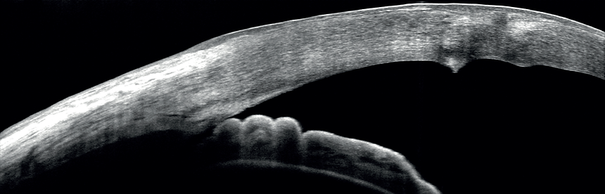 ANTERIOR scan.png