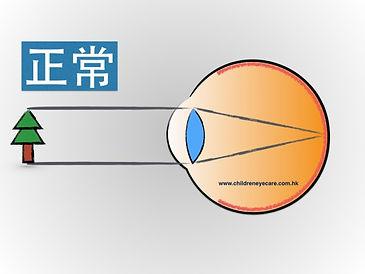 normal eye.jpg