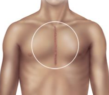 heart surgery scar
