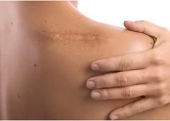 shoulder scar