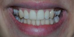 11 weeks of Rapid Smiles