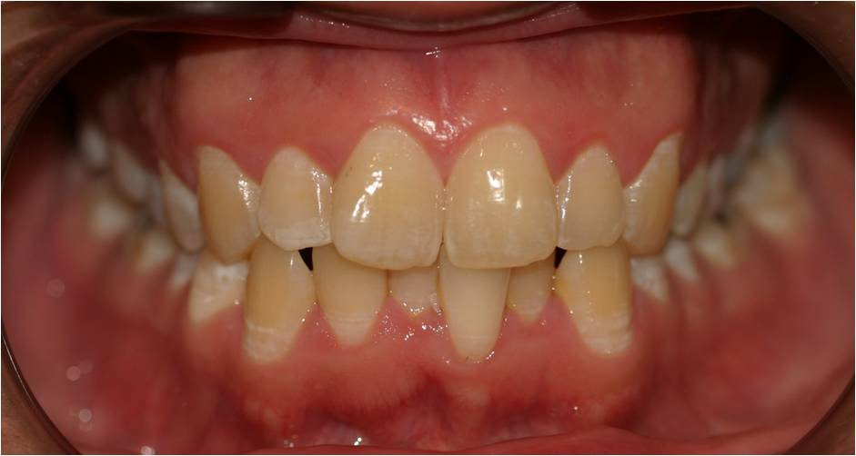 Invisalign and Whitening before