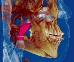 Airway and Orthodontics/Orthopaedics