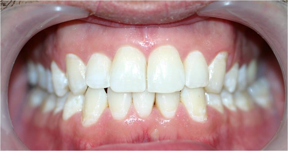Invisalign and Whitening after