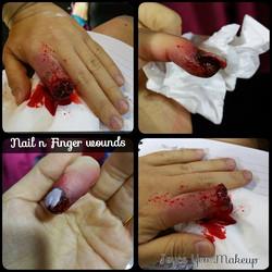 SFX Finger Injuries