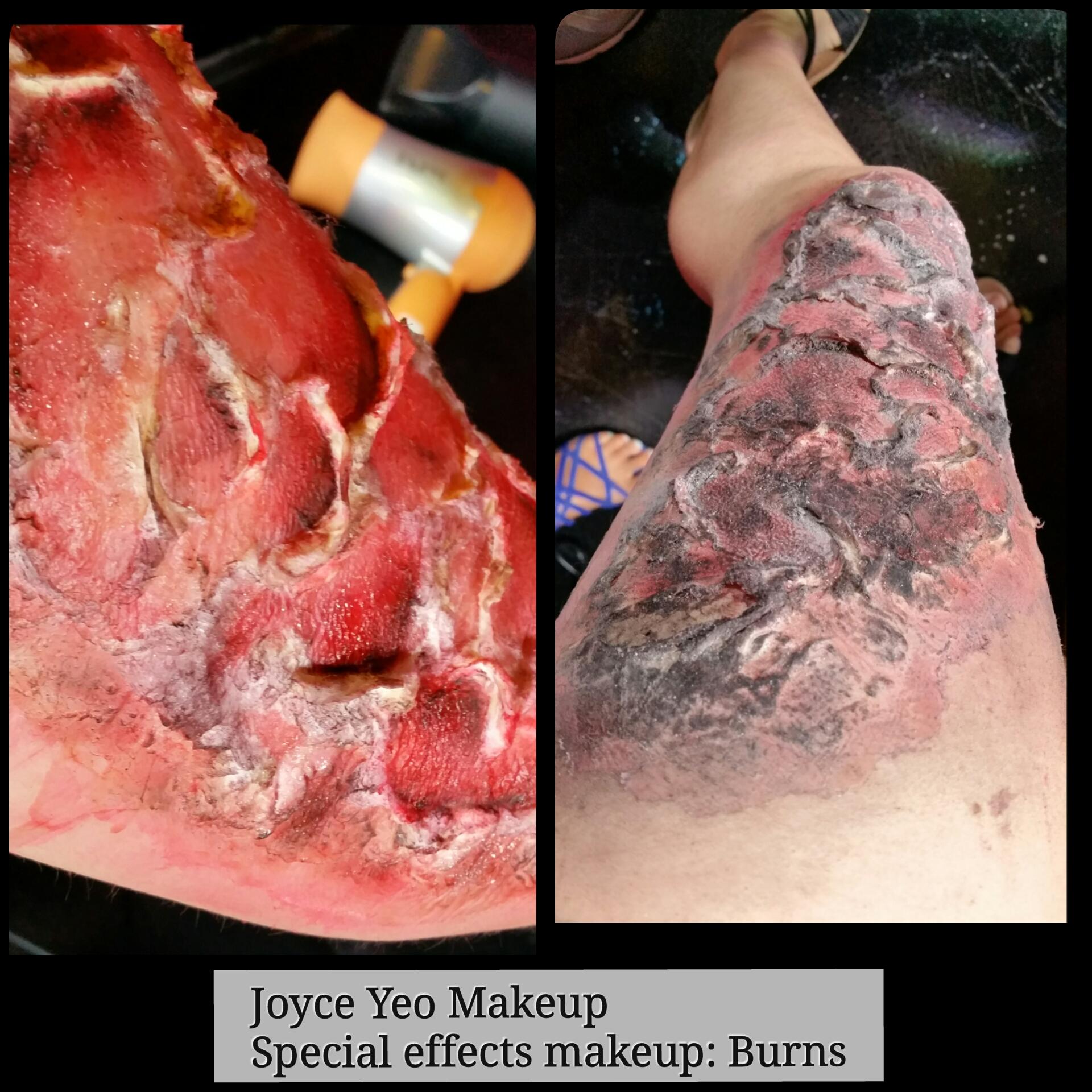 Burns sfx makeup
