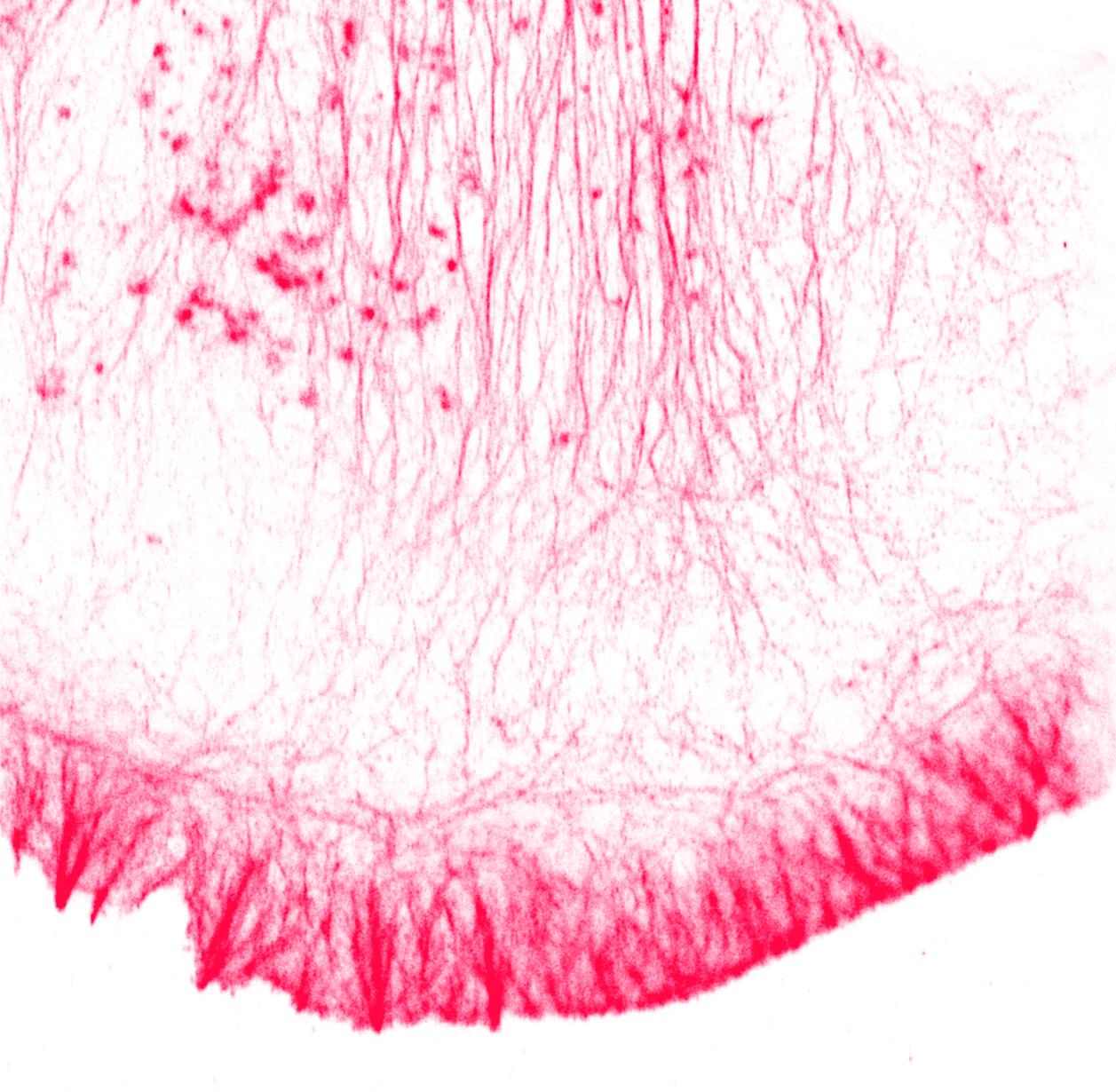 actincelli