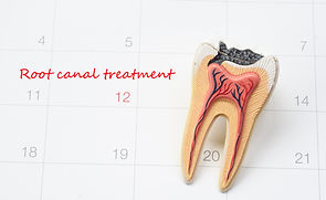A note of a dentist appointment on a cal