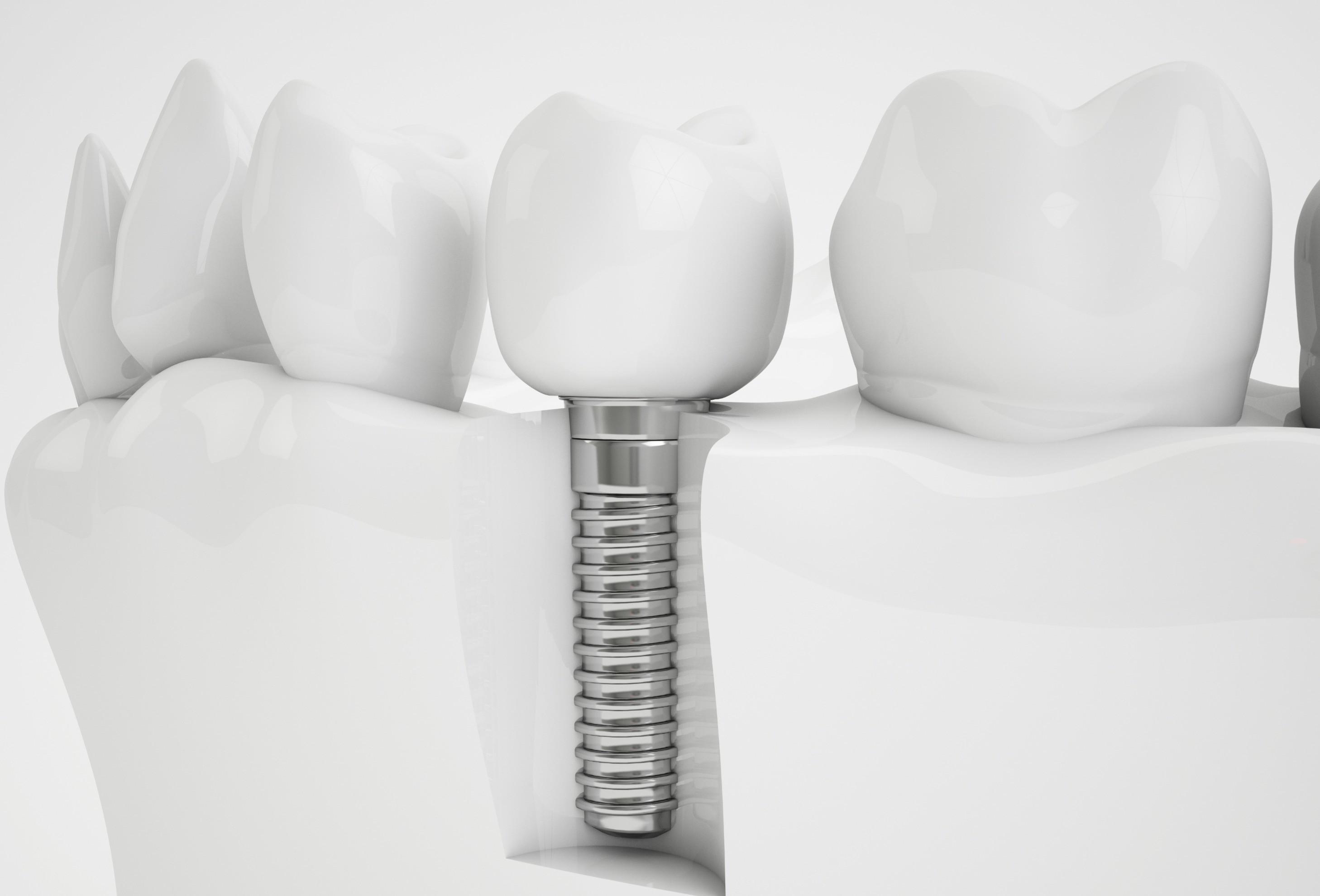 Free consultation on implants