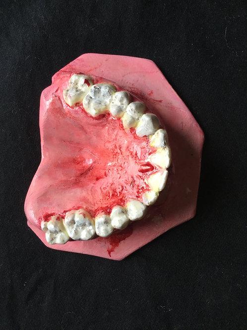 Teeth top pallet