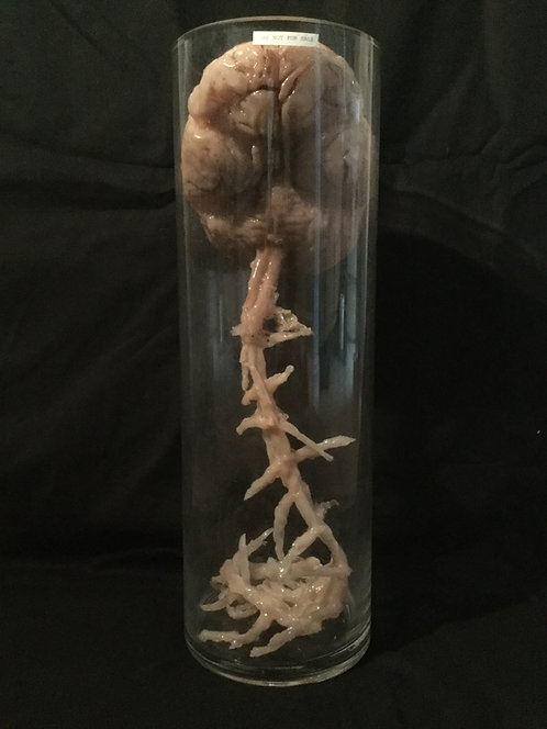 Human brain with spinal cord