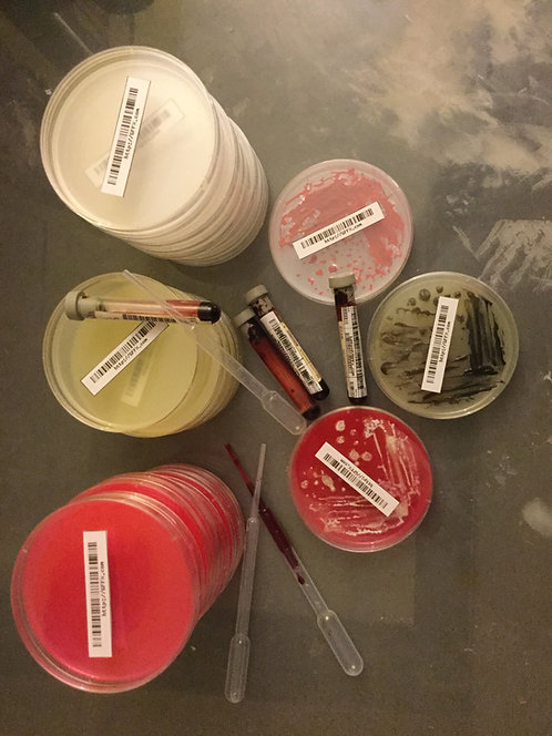 Petri dish groth prop