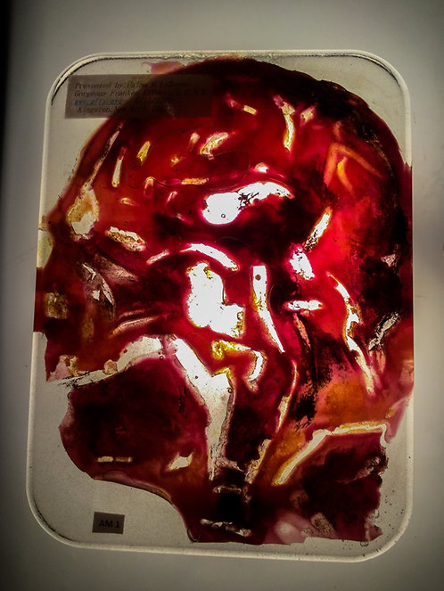 Human head slice