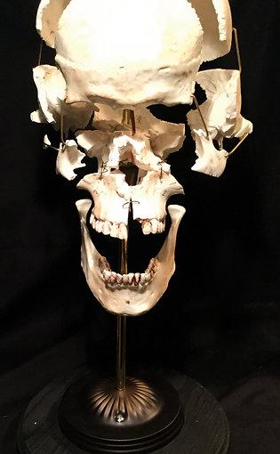 Exploded skull replica
