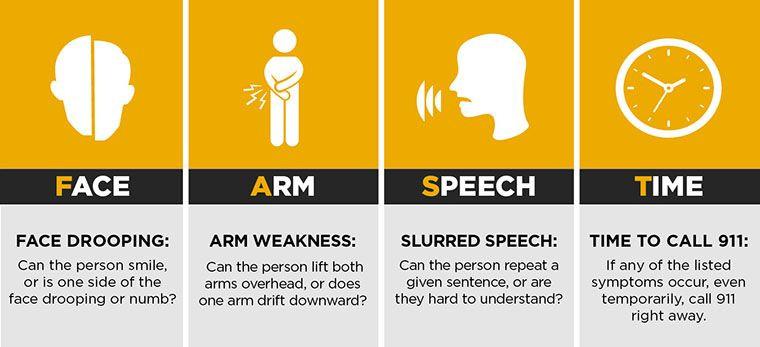Signs of stroke. F-A-C-E