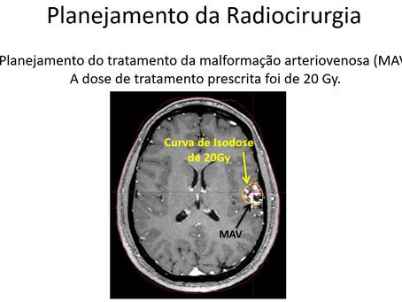 Dor de cabeça secundária à MAV