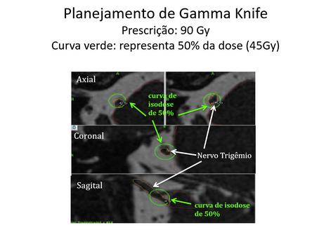 Dor Facial - Neuralgia Trigeminal Essencial