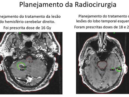 Múltiplas Metástases Cerebrais decorrentes de Carcinoma do Estômago