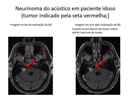 Neurinoma do acústico em paciente idoso
