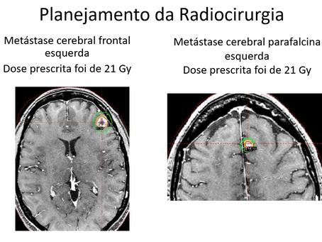 Metástase Cerebral de Câncer de Mama