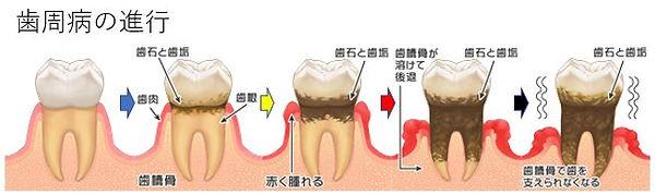 歯周病の進行.JPG