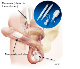 Patient and Partner Satisfaction after Penile Implant Surgery