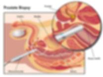 urologist gold coast, rezum, holep, urolift, bph, erectile dysfunction, prostate cancer