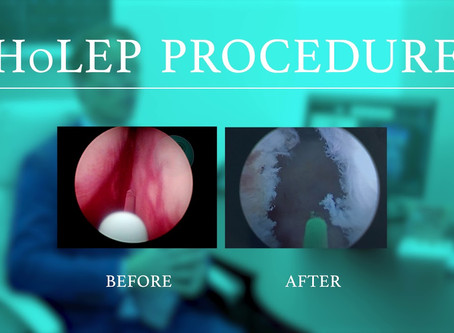 HoLEP is proven to be extremely durable and effective for LUTS due to BPH