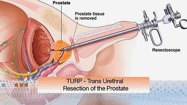 prostate cancer surgeon, urologist, bph, robotic prostatectomy, turp