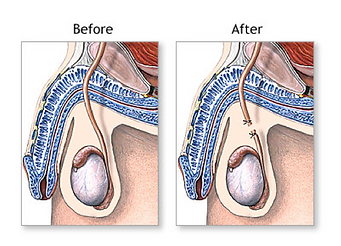 urologist gold coast, prostate surgeon, prostate cancer, prostate enlargement, waterworks issues