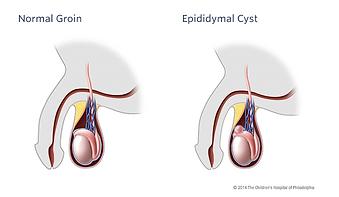 gold coast urologist, prostate cancer, enlarged prostate