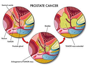 urologist, prostate surgeon, rezum, holep, urolift, bph, erectile dysfunction, prostate cancer