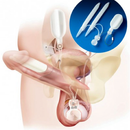 "Penile Implant to cure Erectile Dysfunction – the ""no touch"" technique"