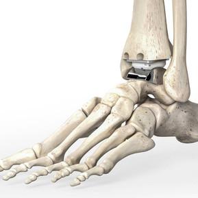 Artroplastia del tobillo: ¿Qué es?