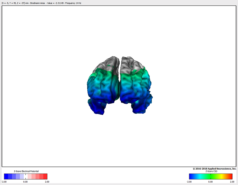 3D visual brain map highlighting mood disorders like depression and anxiety