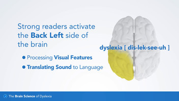 103: The Brain Science of Dyslexia