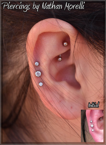 Outer helix triple 3 monthst healed .jpg