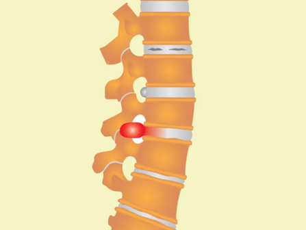 脊椎重要性及影響