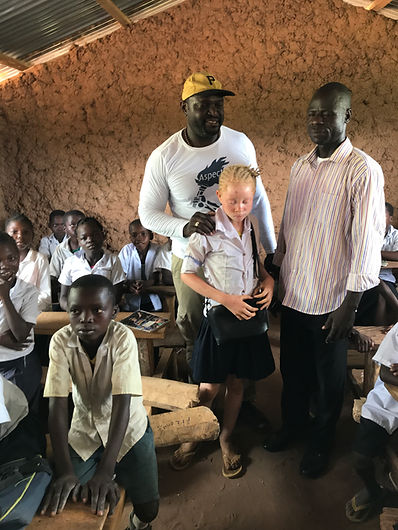 albinos kids.JPG