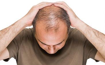 Haarausfall beim Mann