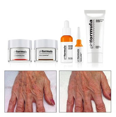 treatment_HANDS-400x403.jpg